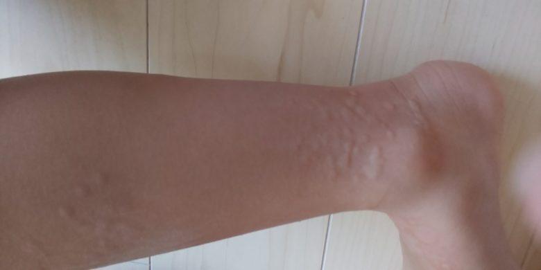 長女蕁麻疹の画像