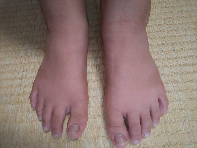 ぶよに刺された子供の足の画像