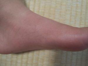 ぶよに刺された子供の足の側面の画像